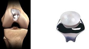La protesi femoro-rotulea mininvasiva consiste nel rivestire le superfici della troclea femorale e della rotula con un rivestimento in titanio epolietilene e può essere considerata monocompartimentale in quanto la sostituzione interessa il solo compartimento femoro-rotuleo.