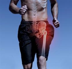 Protesi ginocchio e anca nello sportivo