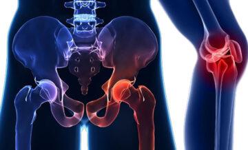 protesi ginocchio anca