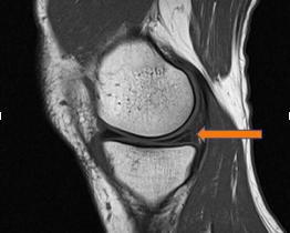 lesione menisco mediale